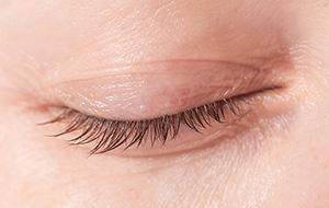 oculoplastics-surgery-calgary-SAEC