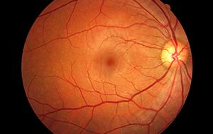 retina-surgery-calgary-SAEC